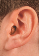 completely in canal hearing aid diagram